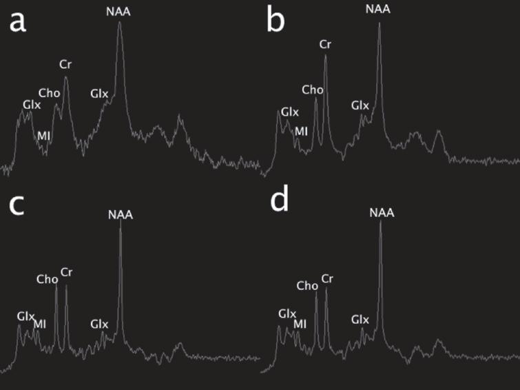 Single voxel MR spectroscopy (MRS) (TR/TE msec, 1500/35). Initial exam (a; left basal ganglia voxel) shows an elevated glutamine and glutamate peak complex at 2–2.5ppm and 3.8ppm (Glx) and reduction of myoinositol (MI). 19 days later, similar changes were present in the same area (b), though subtle differences cannot be discerned due to ferromagnetic artifact on the first study. On the pentultimate MRS performed 3 months later, no significant glutamine or glutamate elevation was present in the left parietal white matter; however, myoinositol was mildly depressed. On the final MRS performed at 6-month follow-up over the left basal ganglia, similar changes are noted; glutamine remains well-controlled and myoinositol and choline (Cho) were mildly depressed.