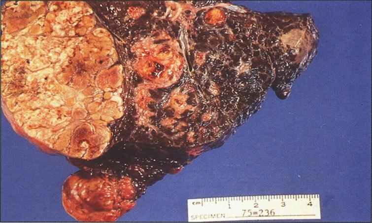 Gross appearance of liver after resection for transplantation showing macronodular and micronodular cirrhosis with large nodule of hepatocellular carcinoma (left) (Figure 7 in the first book).
