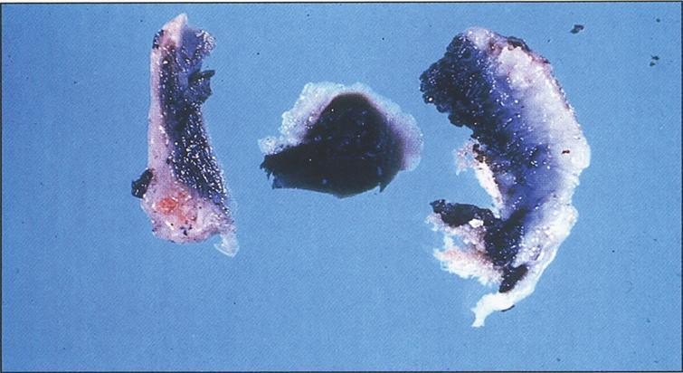 Alkaptonuria-Black pigmental cartilage. (Figure 14 in the first book).