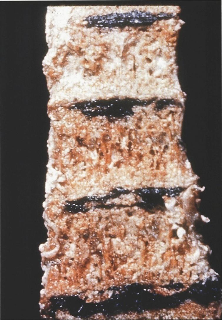 Alkaptonuria-Dense black pigmentation of the intervertebral disks of the vertebrae. (Figure 15 in the first book).