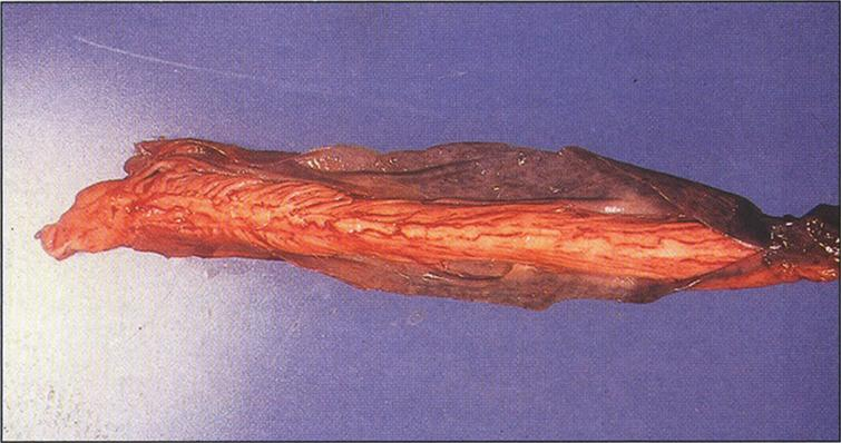 Alkaptonuria- A segment of the spinal cord covered by densely pigmented dura mater. (Figure 18 in the first book).