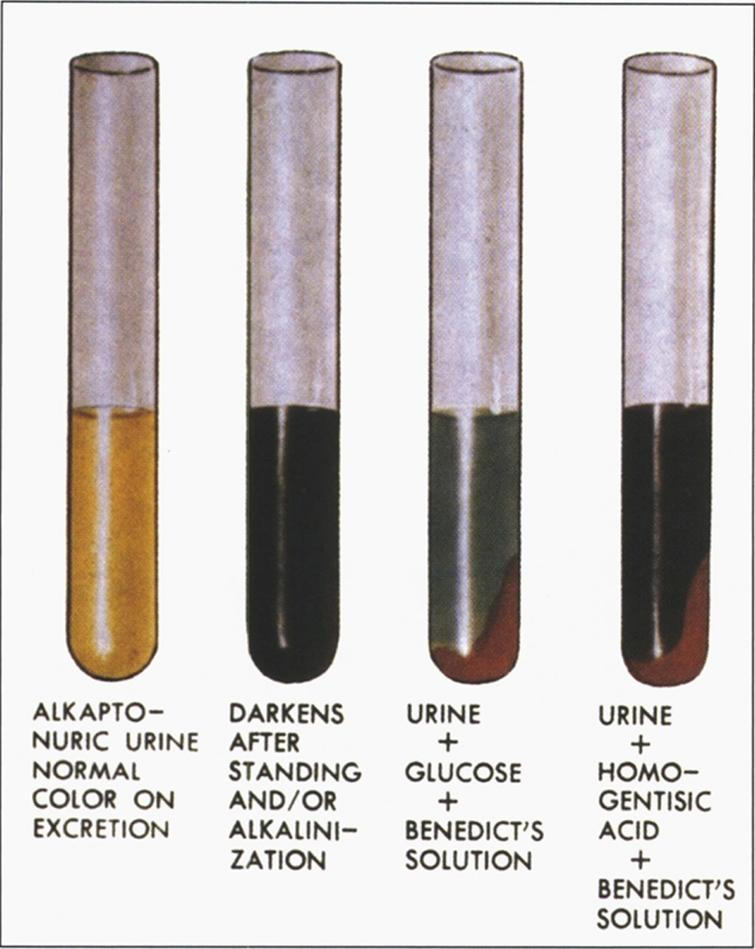 Alkaptonuria- The reaction of urine to oxidation, alkali, and Benedict's solution. (Figure 13 in the first book).