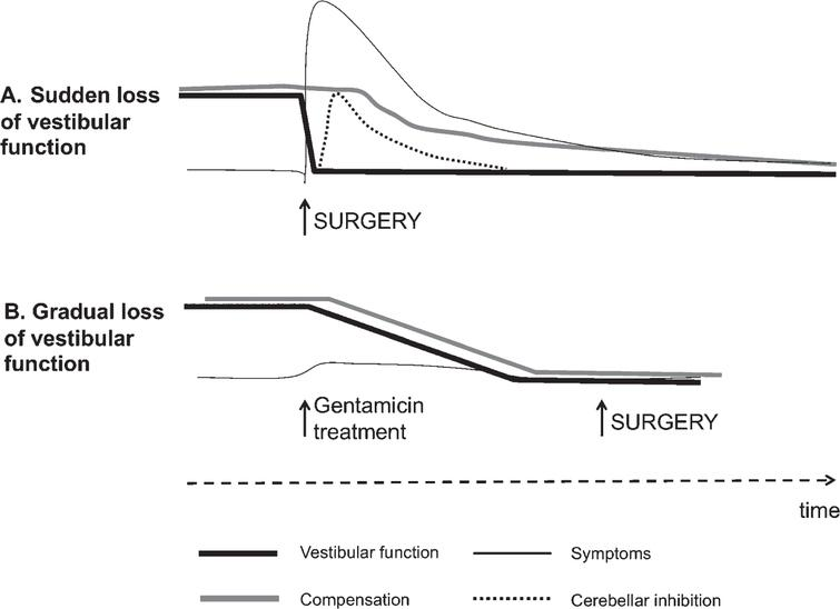 Theory behind the vestibular PREHAB protocol. In A, an abrupt deafferentation cause intense vestibular symptoms initially that gradually subsides as the cerebellar inhibition develops. Compensation becomes delayed as a consequence due to the inhibition as well as from the intensity of symptoms. In B. the vestibular function gradually attenuates with little or no symptoms allowing compensation to ensue unimpeded.