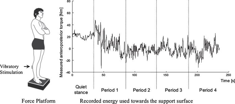 Posturography test. Division of each recorded test into quiet stance and 4 perturbation periods. Each test lasted for 230 seconds, with an initial 30 s recording of quiet stance before any perturbing stimulus was applied, and subsequent 200 s of perturbing stimuli. The perturbation periods were split into four periods during the stimulation (30–80, 80–130, 130–180, and 180–230 seconds, respectively). Each of the perturbation periods contained the same amplitude and duration of perturbing stimulus.