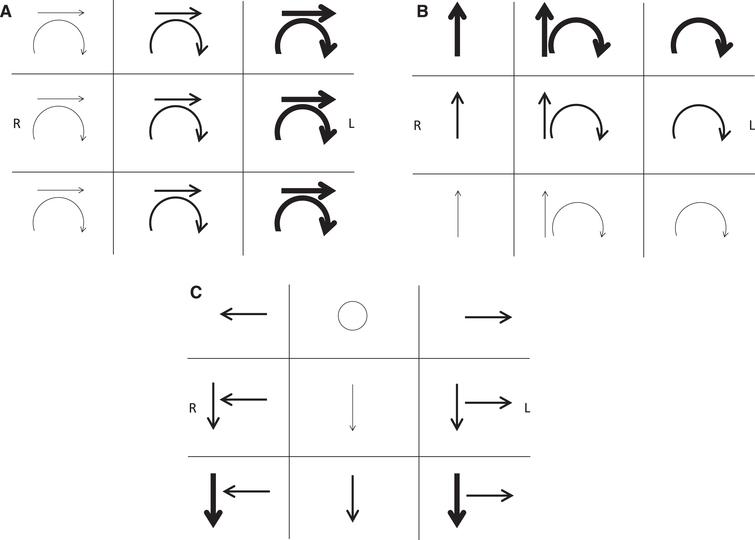 Jerk nystagmus schematic notation. Representing the important attributes of three-dimensional eye movements on a two-dimensional page presents several challenges requiring care to avoid ambiguity. As with describing nystagmus, its schematic notation should document the direction and intensity in the 9 cardinal gaze positions. If the nystagmus is not conjugate, each eye's characteristics can be documented separately. By convention, eye movements are drawn from the vantage point of the examiner in front of the patient. Text should indicate whether arrows represent the slow or fast phase direction. In A-C, the arrows denote the direction of the fast phases, with the boldness of the arrows reflecting the intensity of the nystagmus. The frame of reference must be specified in every schematic in order to clarify whether the arrows for a given gaze position refer to eye movements being described in head-fixed coordinates (as viewed face to face with the patient) or eye-fixed coordinates (as viewed along the patient's visual axis). The frame of reference that most efficiently describes a given pathologic nystagmus is typically the one most closely linked to the mechanism or site causing the nystagmus. Examples are shown: (A) Spontaneous third-degree horizontal-torsional left-beating peripheral vestibular nystagmus. This mixed horizontal-torsional nystagmus in straight-ahead gaze that obeys Alexander's law (increases when looking in the fast phase direction and decreases when looking in the slow phase direction) is typical for an uncompensated right unilateral vestibular lesion. In this case the nystagmus directional arrows are in head-referenced coordinates, reflecting the combined effect of injury to all three semicircular canals and producing nystagmus that remains in a fixed direction with respect to the head and labyrinths regardless of gaze position (see Fig. 3). (B) Left posterior semicircular canal benign paroxysmal positional nystagmus. Nystagmus elicited in the left Dix-Hallpike position consists of mixed upbeat and torsional nystagmus with the upper pole of the eyes beating toward the left ear in straight-ahead gaze. Since the nystagmus direction is fixed in the plane of the left posterior canal, it appears predominantly vertical in rightward gaze and predominantly torsional in leftward gaze when observed along the patient's visual axis (as documented in each box representing eye-referenced coordinates in this schematic), as well as obeying Alexander's law. Note that the torsional fast phases could be confusingly described as clockwise from the examiner's perspective (incorrect, but commonly used) but counterclockwise from the patient's perspective (correct, but inconsistently used). (C) Spontaneous downbeat and bilateral gaze-holding nystagmus. Low-intensity pure downbeat nystagmus in straight-ahead gaze increases in lateral and downgaze and is associated with pathologic bilateral gaze-holding nystagmus. This schematic uses head-referenced coordinates, indicating that the downbeat component appears to remain fixed to labyrinthine coordinates regardless of gaze position. This may imply that the downbeat nystagmus is coming from a vestibular tone imbalance of the vertical rotational vestibulo-ocular reflex.