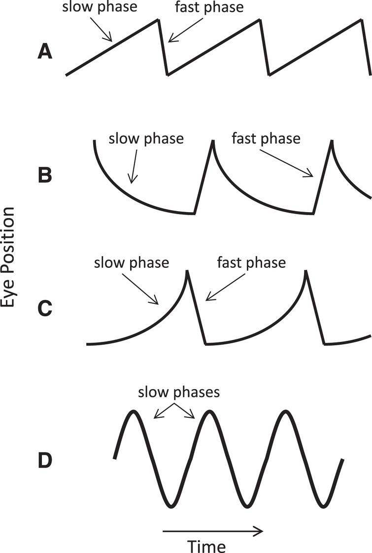 Common nystagmus slow-phase waveforms. (A) Constant velocity (linear) waveform, with added fast phases producing a sawtooth appearance characteristic of vestibular or cerebral hemispheric disease. (B) Decreasing velocity waveform with a negative exponential time course typical of pathologic gaze-evoked nystagmus from an impaired neural integrator. (C) Increasing velocity waveform suggesting an unstable neural integrator. (D) Pendular nystagmus, consisting of only slow phases. Adapted from Leigh and Zee [109].