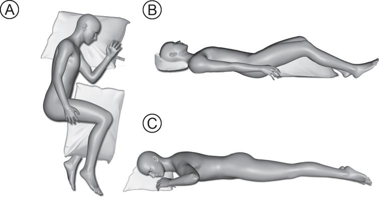 Recommended sleeping positions and pillow orientation (A - lateral position and B –supine sleep position). Not recommended prone sleep position (C –prone sleep position).