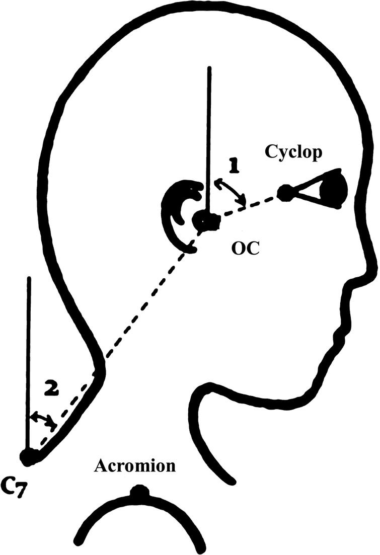 Head and neck flexion angles. Head flexion angle (1) is the angle between the global vertical and the vector pointing from occiput-cervical (OC) to Cyclops (midpoint between the left and right outer canthi), Neck flexion angle (2) is the angle between global vertical and vector pointing from C7 to OC.