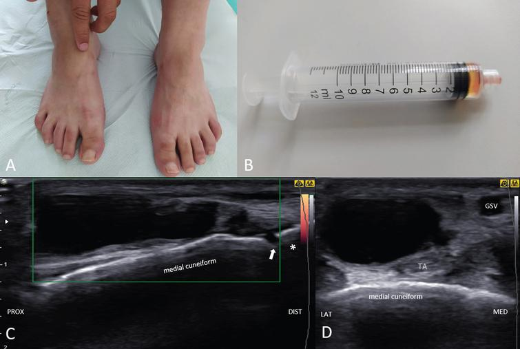 The physician's finger indicates a mass on the patient's right foot (dorsomedial aspect) (A). The syringe contains 1 mL of gelatinous and yellowish fluid aspirated from the ganglion (B). Ultrasonography (long-axis view) shows an irregular, septated, and hypoechoic mass in continuity with the 1st metatarsal-cuneiform joint with no hypervascularisation under power Doppler imaging (C). Adjacent tibialis anterior tendon (TA) is seen in the short axis-view (D). Asterisk; 1st metatarsal bone; arrow; 1st metatarsal-cuneiform joint, GSV; greater saphenous vein.
