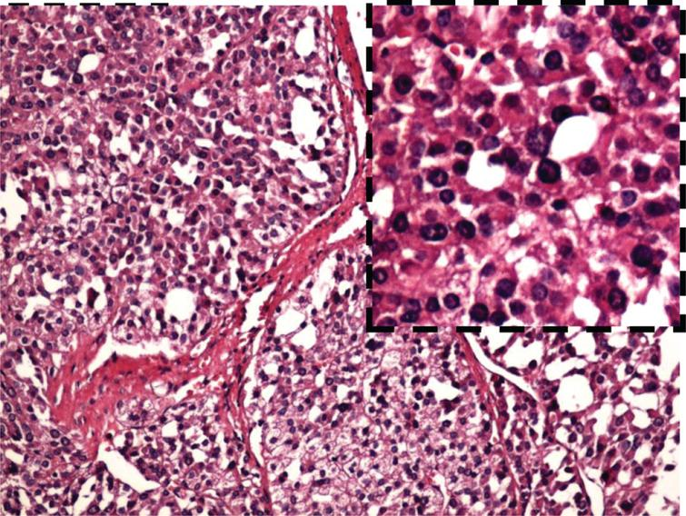 The pathological result of the large adrenal gland tumor. The carcinoma is mainly constituted by eosinophils in adrenal cortex. The carcinoma cells are separated by wide fibrous band, accompanied by calcification and necrosis. (H.E. staining) ×40.