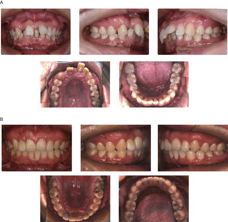 Comparision of intraoral potographs of pre- and post-treatment. A. Intraoral photographs of pre-treatment; B. Intraoral photographs of post-treatment.