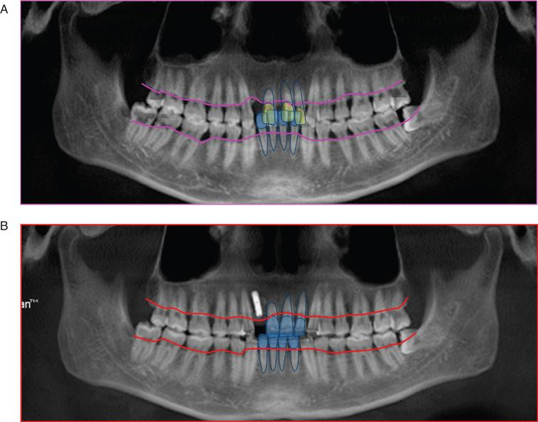 Panoramic radiograph of pre- and post-treatment. A. Panoramic radiograph of pre-treatment; B. Panoramic radiograph of post-treatment. The images showed the relationship between the absorption lines of alveolar bone and the anterior teeth of the uper and lower jaw. The height of alveolar bone in the anterior region was significantly increased.