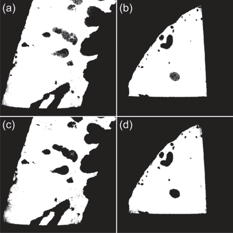 Otsu (a, b), and MRF segmentation (c, d) results for CT images in Fig. 6 (a) and (b).