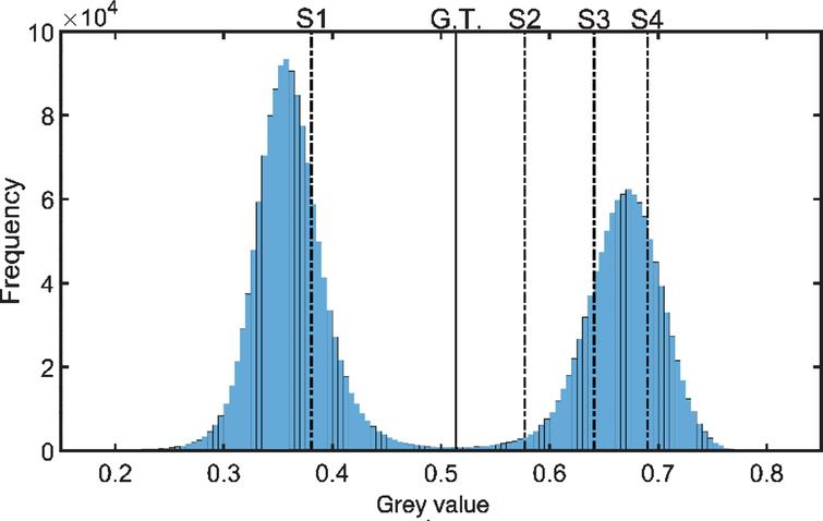 Image histogram of the CT image in Fig. 7(a) with annotations. See text for details.