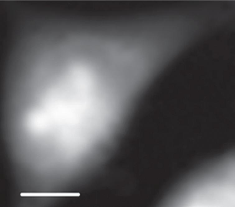STXM image of an interphase CHO cell at 398 eV. The scale bar is 5μm.