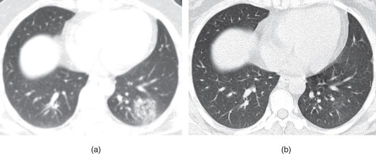 Example of CT image slices of a male COVID-19 patient of 32 years old. (a) CT scan performed 5 days after admission. Images show a focal ground-glass opacity in the lower lobe of the left lung. (b) Follow-up CT taken after discharge (or obtained on day 27 after admission to hospital). The lesion was basically absorbed, leaving a little GGO. This patient was enrolled in group B.