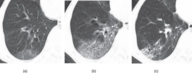 Example of CT image slices of a male COVID-19 patient of 65 years old. (a) CT scan performed 2 days after admission. Images show ground-glass opacity (GGO) in the posterior basal segment of the right lower lobe, with the lesion located subpleural region. (b) CT images obtained 10 days after admission. Lesions Increased with higher density and thickening of the interlobular septum. (c) Follow-up CT scan (obtained at day 36 after admission and 18 days after discharge) shows visible parenchymal bands, irregular interface, and traction bronchiectasis, which indicates fibrosis. The patient was enrolled in group A.