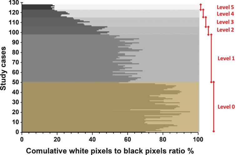 The six severity levels based on the cumulative ratio of white pixels to black pixels for all study cases.